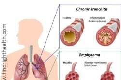 Chronic Obstructive Pulmonary Disease (COPD):